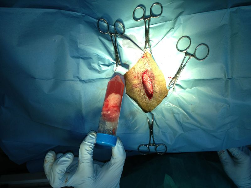 pobranie materiału do przygotowania komórek macierzystych